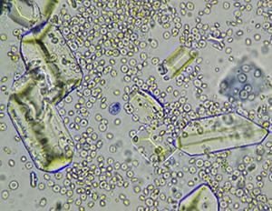 ストルバイト(リン酸アンモニウムマグネシウム)